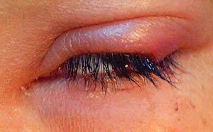 تشخیص افتراقی قرمزی و تورم پلک