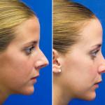 جراحی بینی استخوانی 3
