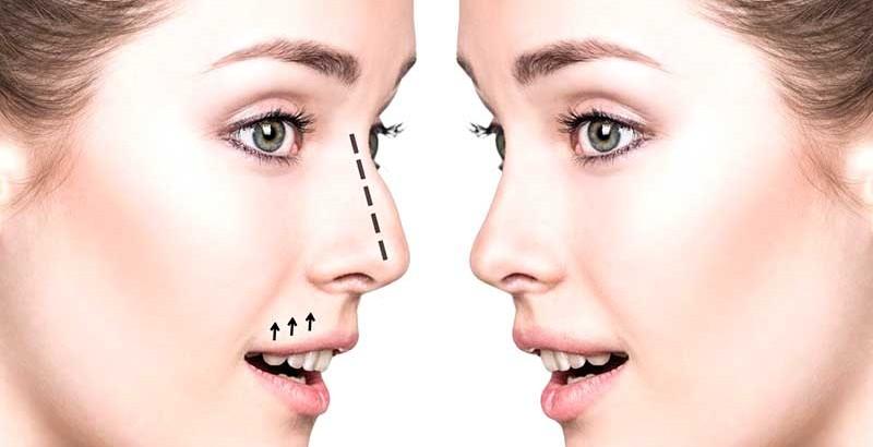 جراحی-ترمیمی-بینی01
