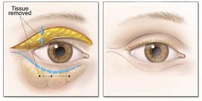 جراحی پلک ( بلفاروپلاستی)