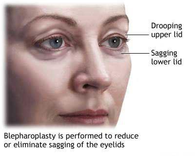 جراحی پلک ها ( بلفاروپلاستی )