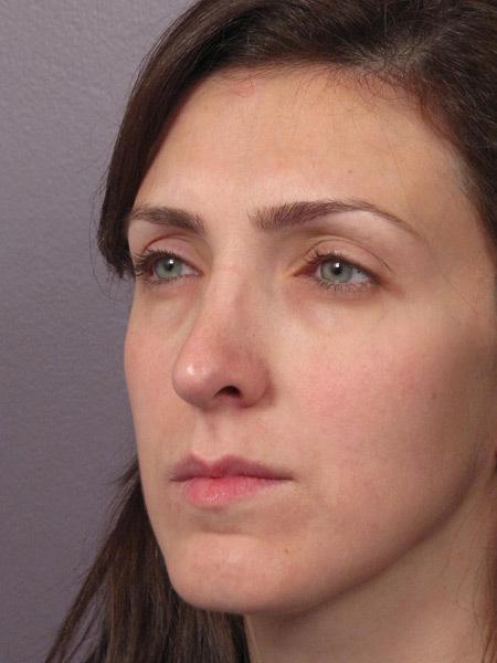 روشهای جراحی تقویتی بینی