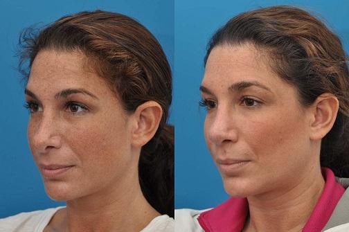 عمل جراحی باز و بسته بینی