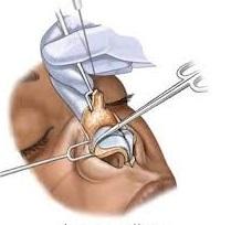 عمل جراحی رینوپلاستی