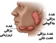 بیماری های غدد بزاقی