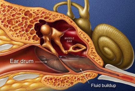 اختلالات شیپور استاش