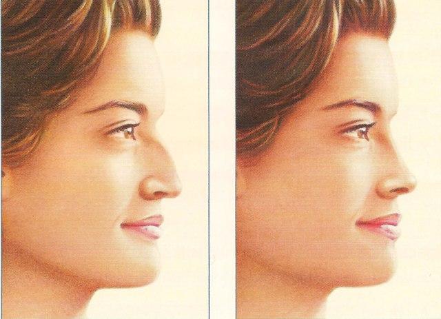 عمل زیبایی بینی های غضروفی
