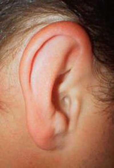 شکستگی لاله گوش