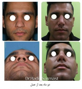 عکس های جراحی بینی