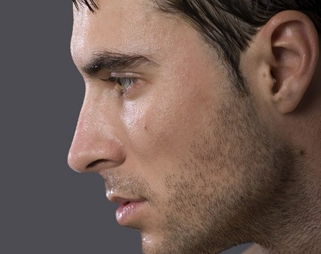 پوست نازک نوک بینی در جراحی