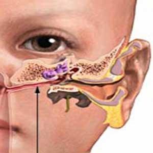 علت التهاب گوش خارجی