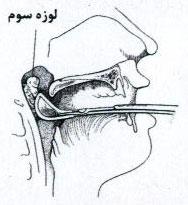 بیماری لوزه سوم