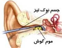 موم گوش
