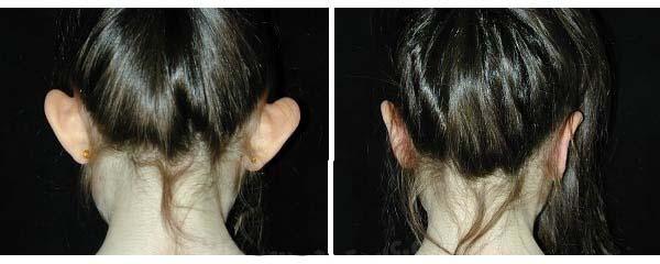 عمل بازسازی لاله گوش