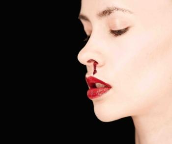 خونریزی بینی (epista,is)