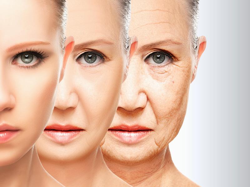 Face lift surgery02