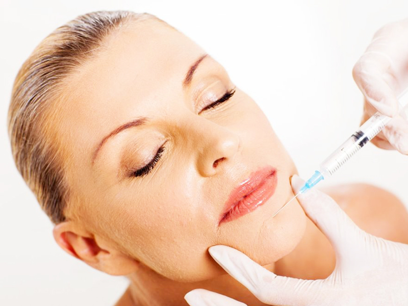 Injection of dermal fillers 01
