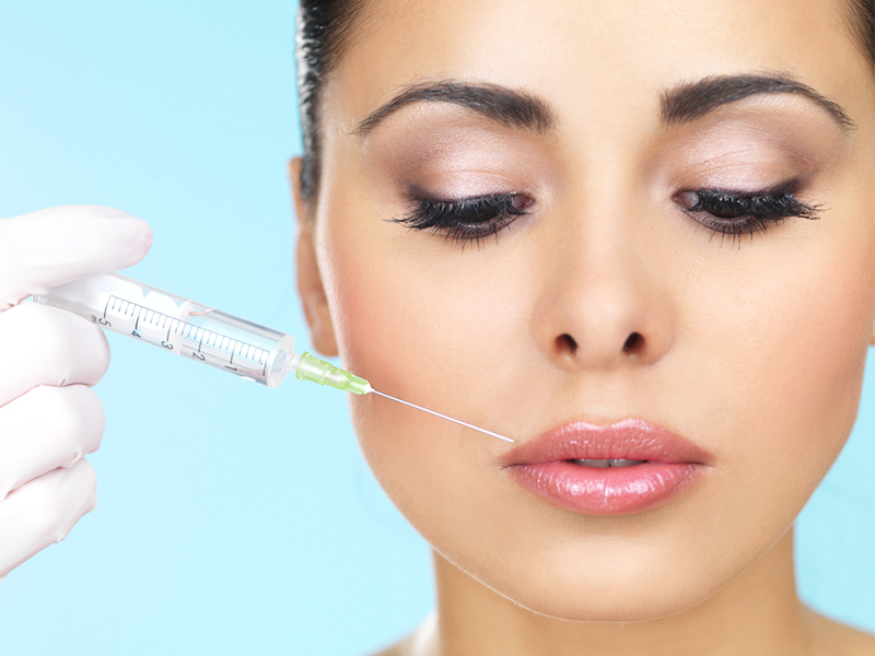 Injection of dermal fillers 02