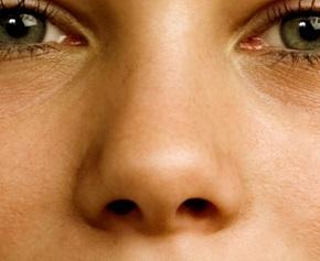 علل شایع گرفتگی بینی(انحراف بینی)