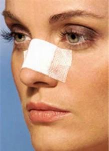 تقویت ساختار بینی در جراحی بینی