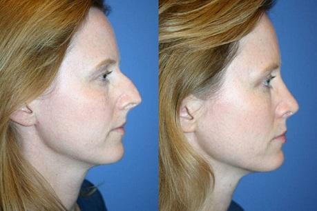 عوارض بیهوشی جراحی بینی