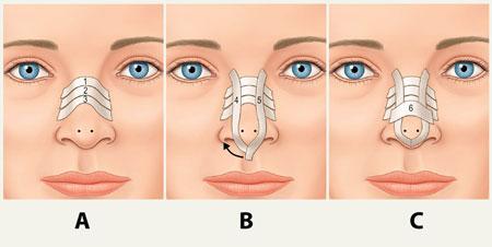 چسب بعد از عمل بینی