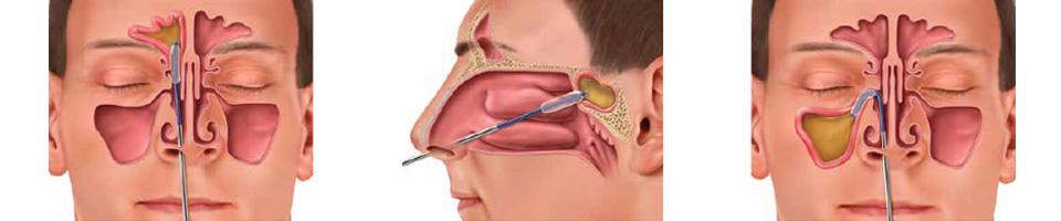 درمان سینوزیت با عمل جراحی