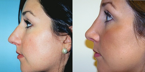albany-rhinoplasty-before-after-photo-4