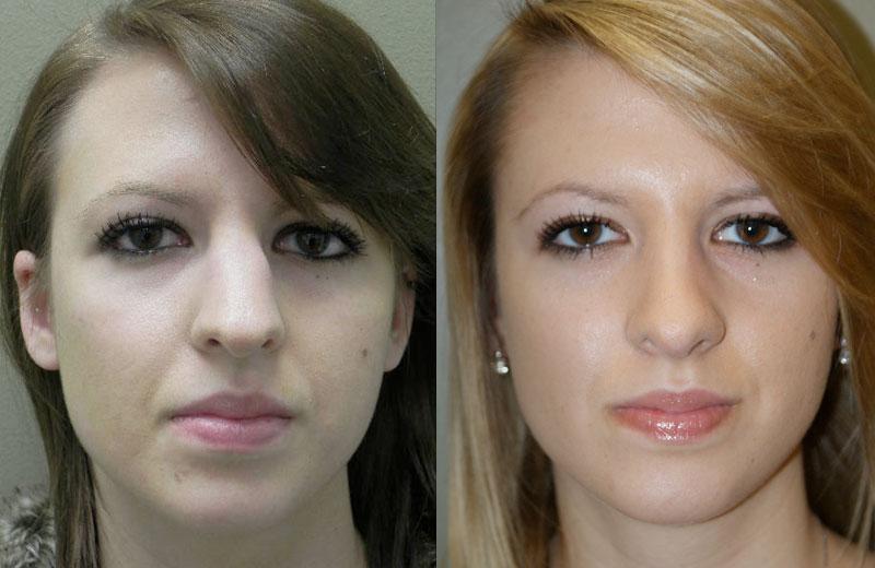 تکنیک جراحی در بینی های گوشتی