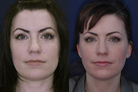 closed_rhinoplasty_specialist_los_angeles_nose_job_surgeon_01_fs