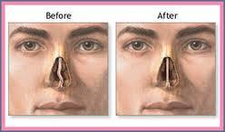 انحراف تیغه بینی از علل سردرد