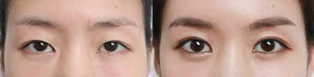 eyeoo1