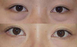 eyeoo5