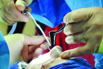 جراحی بینی به روش ivs