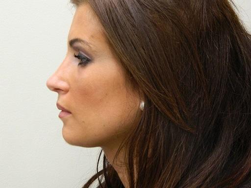 جراحی پلاستیک بینی و عوارض آن