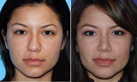 پیشگیری از عوارض تنفسی جراحی بینی