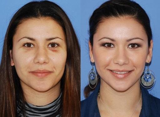 جراحی پلاستیک بینی های گوشتی