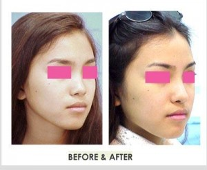 nose-implant-surgery