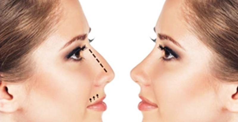 nose surgery 01