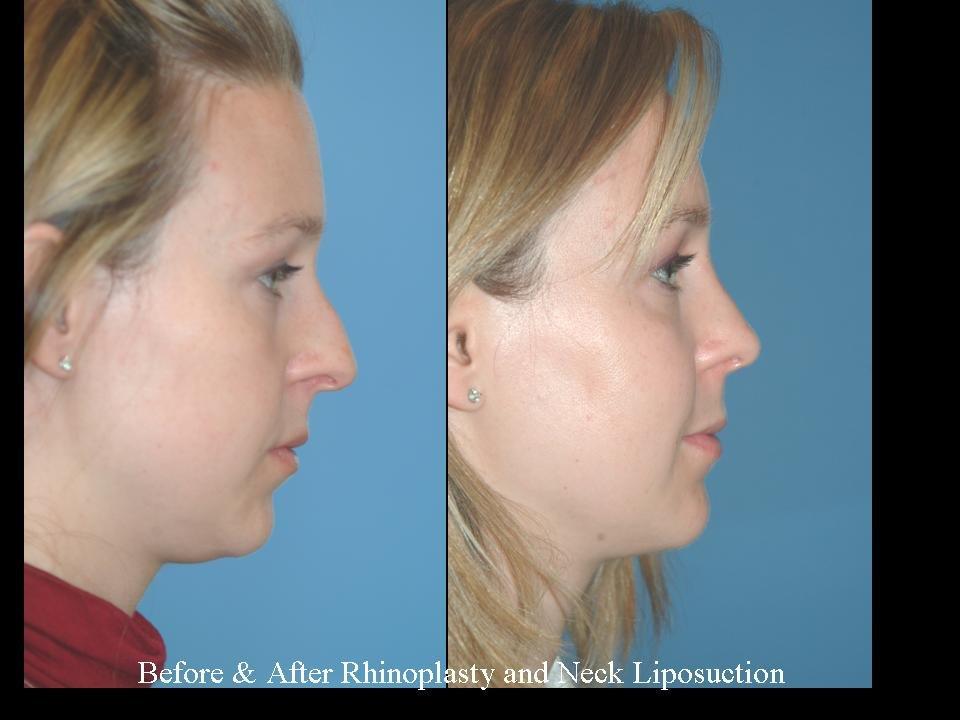 جراحی افتادگی یکسوم میانی بینی