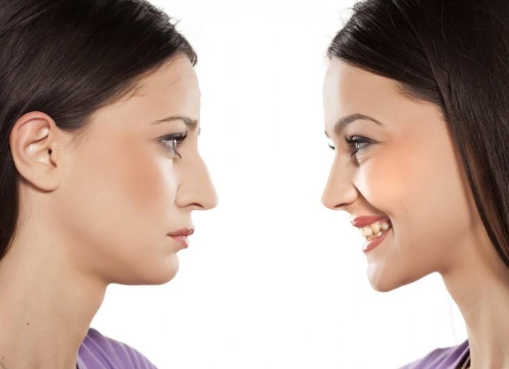 جراحی بینی استخوانی: روش و مراحل