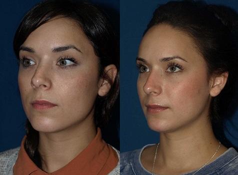 عوارض جراحی زیبایی بینی و پیشگیری از آن ها