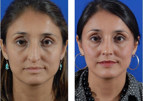 rhinoplasty-before-after-1