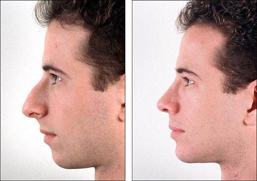 rhinoplasty-before-and-after-766