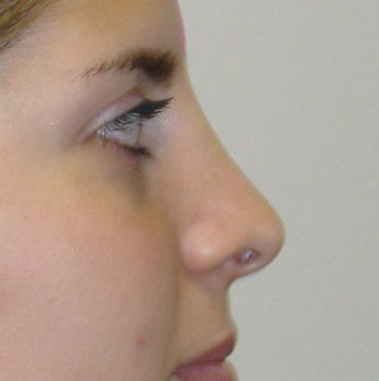 rhinoplasty-nose-reshaping-surgery-2