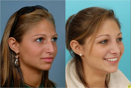 rhinoplasty_nose_reshaping_179