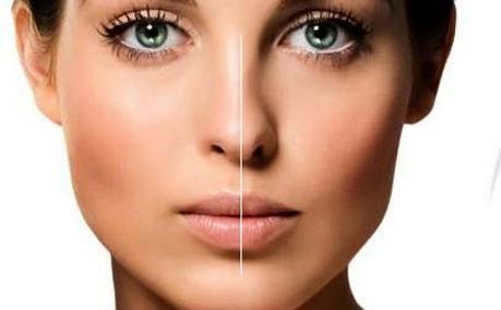 جراحی زیبایی بینی گوشتی: روش و عوارض