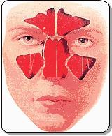 انواع سینوس های اطراف بینی