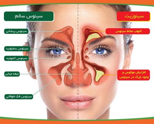 علائم عفونت سینوس ها (سینوزیت)