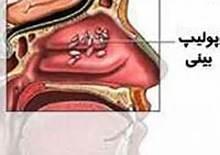 عوامل تشدید کننده پولیپ بینی